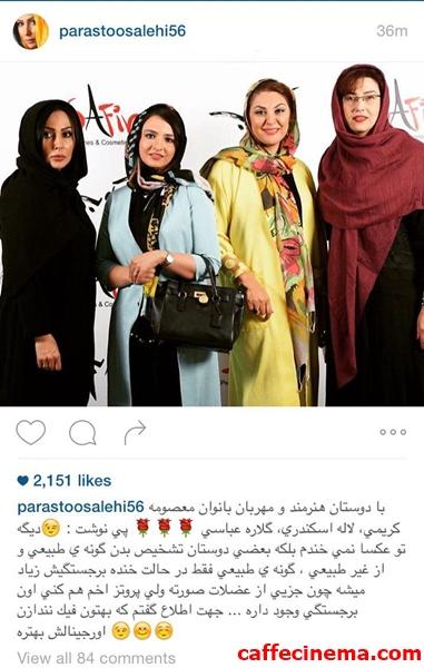 تصویری که بازیگر زن سینما و تلویزیون ایران، به عنوان دلیلی بر عدم کاشت گونه مصنوعی منتشر کرد